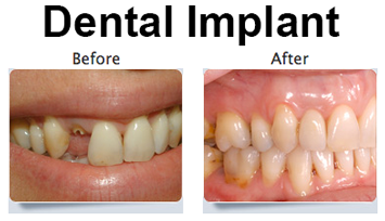 Dental-Implant-Before-and-After