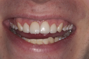 Final Result for Implant-crown replacement