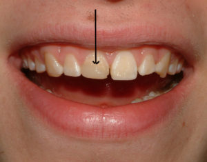 Photos showing tooth to be removed and replaced with an implant