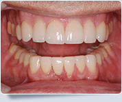 North York Dental Implants