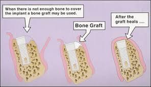 bonegraft
