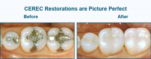 Before and after of CEREC Restoration