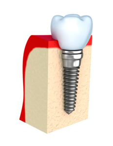 What a bone looks like after dental implant