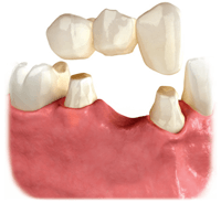 Illistration of a fixed dental bridge