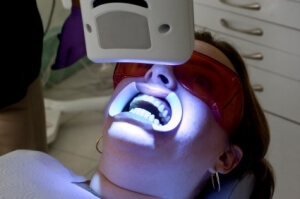 In Office Tooth Whitening