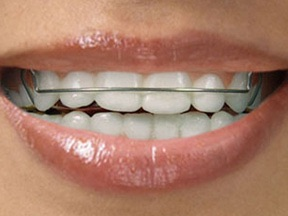 Removable Orthodontic Appliance