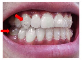 Invisalign Clear Orthodontic Aligners