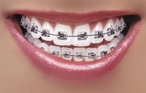 Metal Orthodontic Braces
