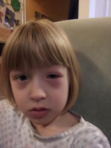 Child with swollen eyes
