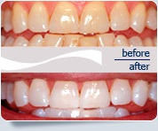 North York Teeth Whitening
