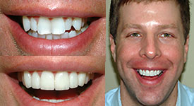 Dental-implants-north-york-toronto