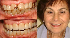 North-York-dentist-before-and-after