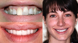 orthodontics-invisalign-north-york