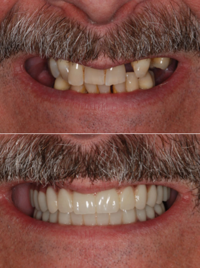 Teeth In A Day All On Four Procedure North York Toronto