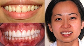 teeth-whitening-north-york-toronto